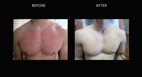 acne treatments  dr crippen  kelowna dermmedica