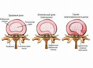 Лечение остеохондроза поясничного отдела в екатеринбурге