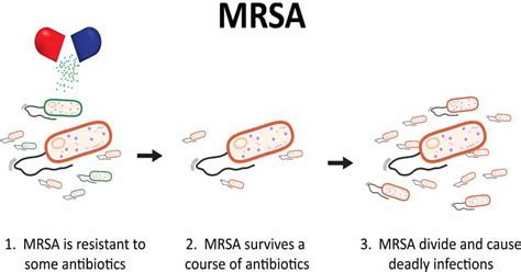 home remedies  mrsa staph infection