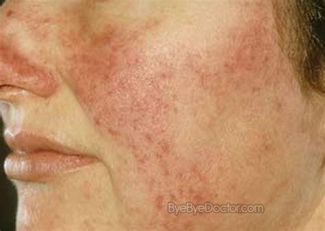 rosacea treatment pictures symptoms