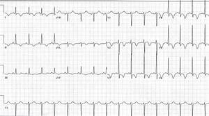 Ekg Showing Deep T Wave Inversions Across Precordial Leads