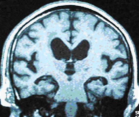 le diagnostic de la maladie d alzheimer site des