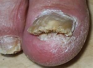 Что делать если грибок на пальцах ног