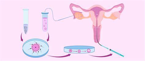 acupuncture grossesse si鑒e techniques de culture d 39 embryons en laboratoire pour une fiv