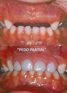 pedo partial cosmetic dentistry center  san diego