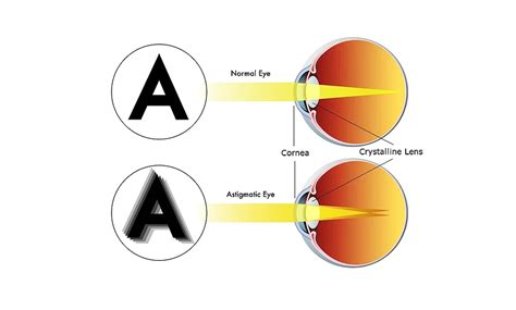 When astigmatism is present, it typically does not exceed 3.0 diopters (d) in magnitude and can be fully corrected with a single lasik procedure. Astigmatism   Look & See Eyecare