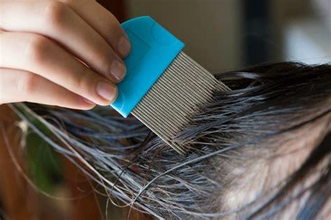 natural remedies  head lice thriftyfun