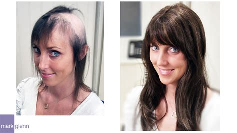 Female Hair Loss Solution - Mark Glenn Hair Enhancement