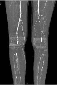 Cta Runoff With Popliteal Artery Occlusion
