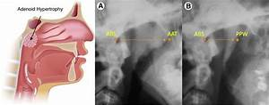 Surgical Management of Nasal Airway Obstruction - Larry M ...
