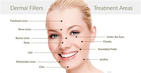 Cosmetic Fillers | Advanced Dermatology of the Midlands