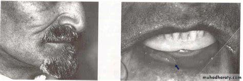 Complete Denture Pptx Unkown Muhadharaty
