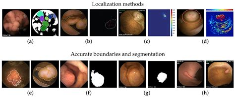 imaging  full text polyp detection