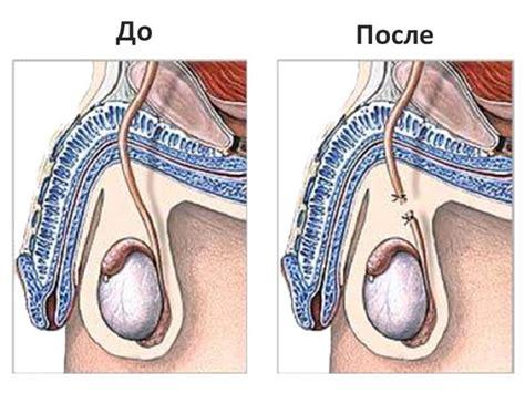 Боровая матка : лечение заболеваний у мужчин