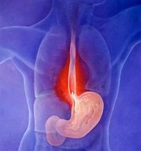 Spina calcaneare: sintomi, cause e terapia per eliminare