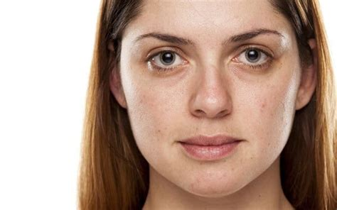 What Does Microdermabrasion Treat? - SkinBase™ Facial