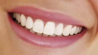 Perfect Smile Teeth