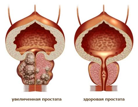 Анальная трещина: причины и лечение острой и хронической