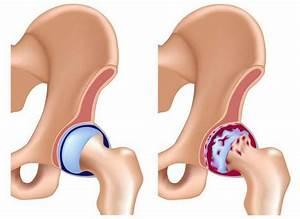 Деформирующий артроз левого тазобедренного сустава лечение