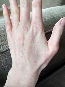 Itchy red bumps all over my hands. What's causing them?