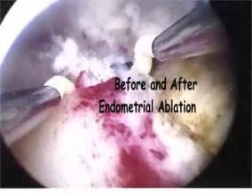 Uterus After Ablation Procedure