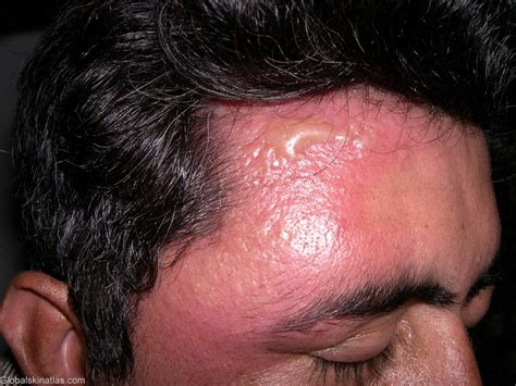 Cellulitis - Diagnosis and treatment - Mayo Clinic