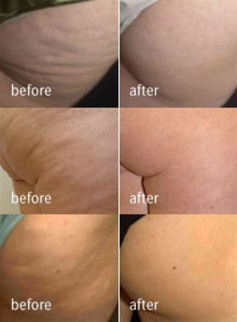 Lpg endermologie face and Body treatments