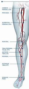 Peripheral Artery Disease Anatomy And Symptoms