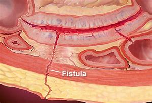 Image result for abdominal fistula