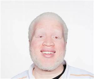 Diagnosis & Tests - Albinism