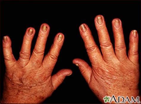 nail abnormalities uf health university  florida health