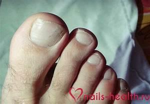 Врастает ноготь на большом пальце ноги грибок