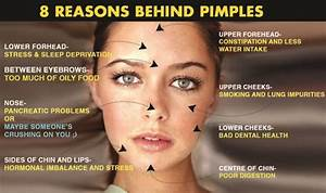 What Causes Pimples