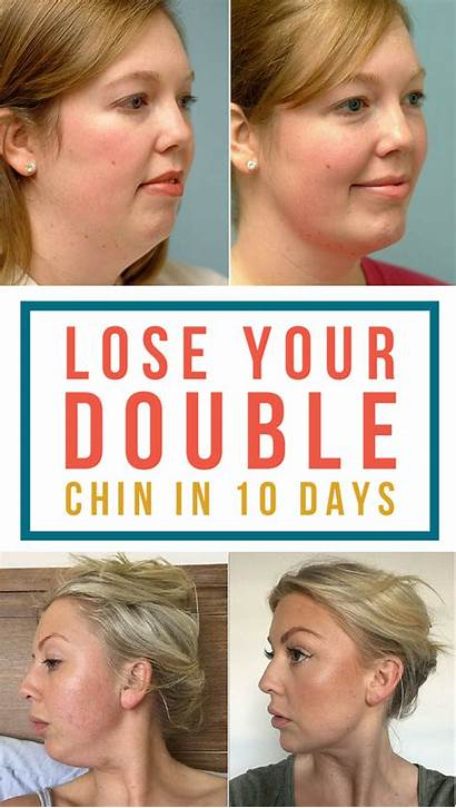 Chin Double Hide Jowls Hairstyle Rid Face
