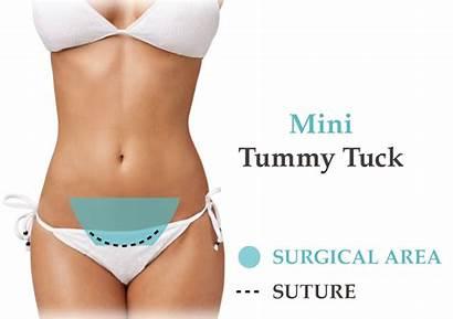 Tummy Tuck Mini Belly Scar Cost Abdominoplasty