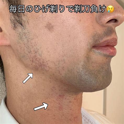 剃刀 負け 湿疹