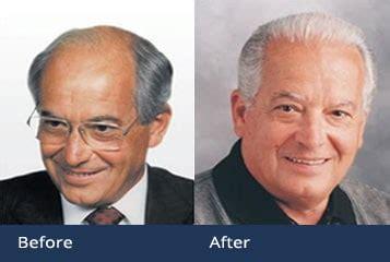 Hair Implants Superior Az 85273 My Master Hair Transplant 3455