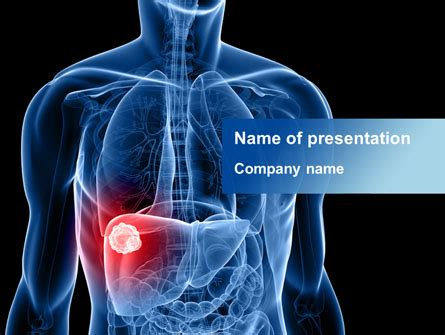 liver disease  template  powerpoint