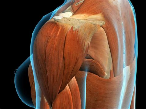 Deltoid pain: Causes, exercises, and relief