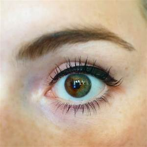 I have partial heterchromia