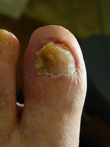 Mycose des doigts