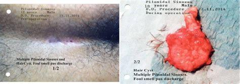 Pilonidal Sinuses Surgery Dr Ali Jafar Clinic