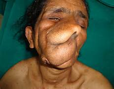 Displaying 19  Images ...Plexiform Neurofibroma Face