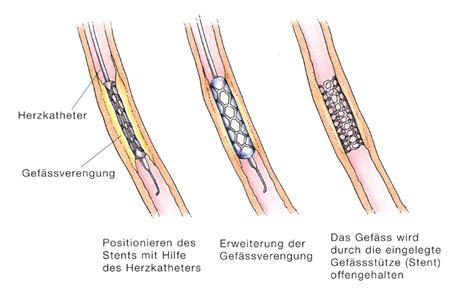 angina pectoris symptome