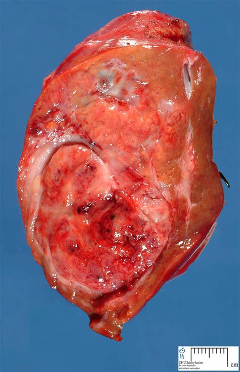 hepatic tumors humpathcom human pathology