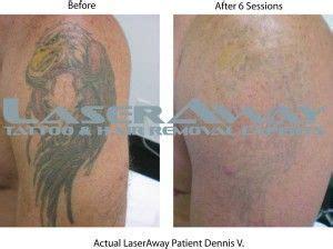 tattoo removal hurt  unfortunate