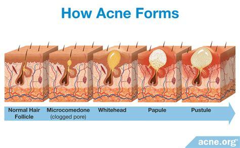neck acne treatment acne org