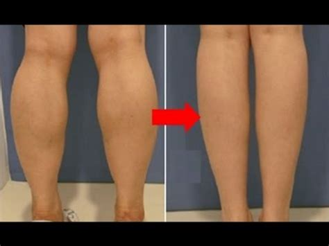 How I Slim Down My Huge Calves In 3 Weeks  Get Slim. Hvac Commercial Contractors Roofer New York. Automotive Crm Companies Veeam Offsite Backup. Responsive Website Designers. Nursing Schools With Accelerated Programs. Months Of The Year In French. How Are Books Published Tattoo Removal Dublin. Proof Of Claim Bankruptcy Abbey Locksmith Nyc. Best Barber School In Usa Dish Satellite Dvr