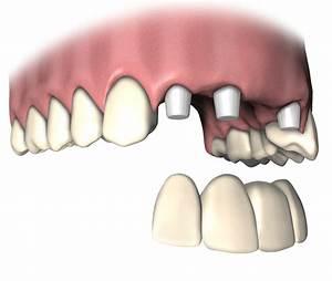 Welcher Estrich Ist Besser Bei Fußbodenheizung : welcher zahnersatz ist der beste bei parodontose ~ Orissabook.com Haus und Dekorationen