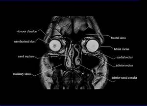Diagram Of Sinuses Mri